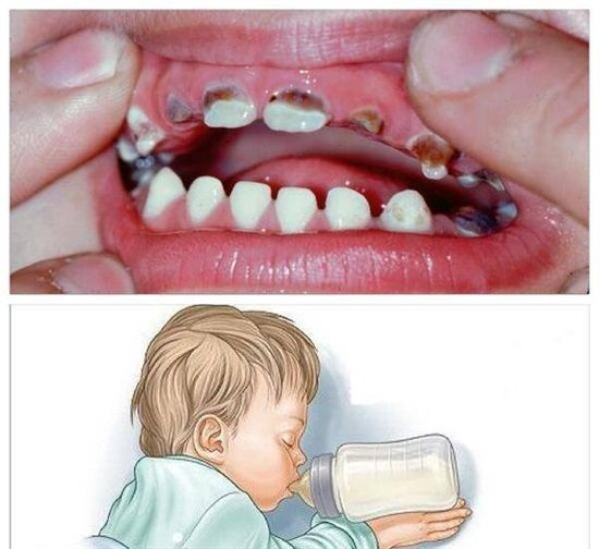 Dentaltown - Please don't put your baby to bed with a bottle of milk or juice. This habit can lead to early cavities, known as baby bottle tooth decay.