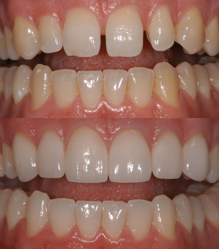 #Cosmetic #Dentistry is the area of #dentistry dedicated to giving you a healthy and esthetic smile...