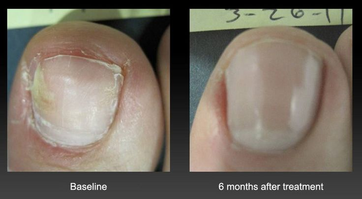 Learn Everything You Need to Know About Toenail #Fungus – Read This Guide Before Getting Treatment http://www.footankle.com/toe-conditions/fungal-discolored-toenails/