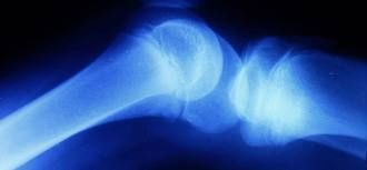 Total Knee joint replacement surgery is permanent procedure if the knee joint is severely damaged. Manipal hospital provides latest arthroplasty treatment in bangalore for diagnosing bone problems.