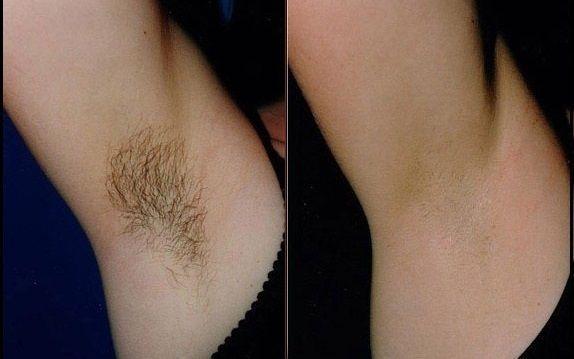 no no hårborttagning