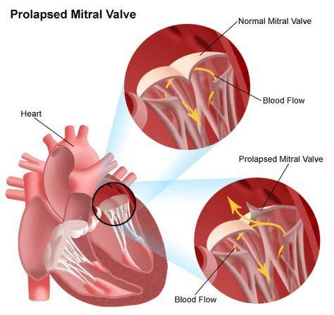 Mitral Valve Prolapse | Johns Hopkins Medicine Health Library