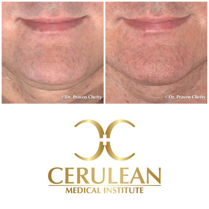 Belkyra before and after photo illustrating double chin reduction in our handsome male patient✨ #Belkyra #BeforeAndAfter #Submental #Chin #Youthful #Jawline  #NonSurgical #Cosmetic #Dermatology #Facial #Sculpting #Contouring #CeruleanMedicalInstitute #DrPravenChetty #RealSelf #TopDoctor #Beautiful #Kelowna #Okanagan