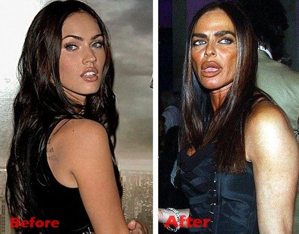 Lip Injections Gone Bad - Starplasticsurgerypictures.com