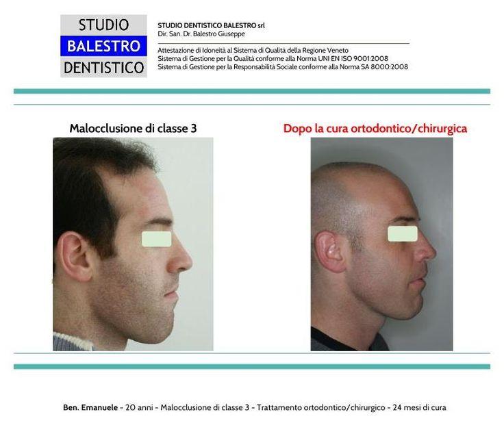 Casi clinici ortodontici Chirurgia Ortognatica di una Classe 3 scheletrica http://www.studiodentisticobalestro.com/2016/05/chirurgia-ortognatica-classe-3.html