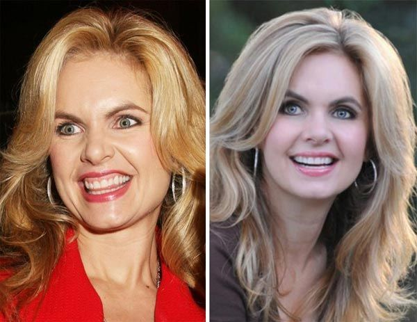 Victoria Osteen Plastic Surgery Before Amp After Http