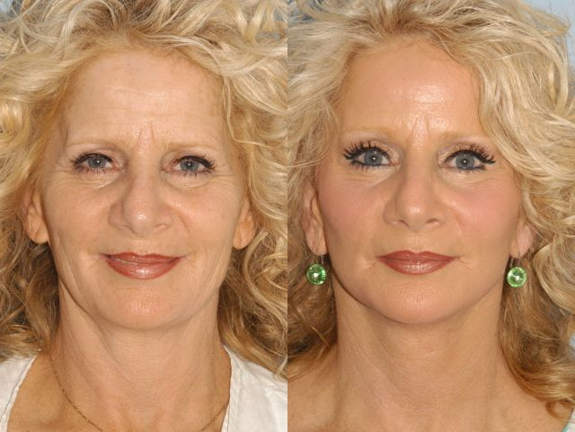 56 year old Lower #Facelift & #Forehead Lift #DrPaulBlair