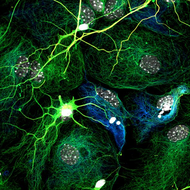 "Image of neurons and glial cells (non-neural brain cells) cultured in a Petri dish. The ""skeleton"" of neurons and glia – molecules called microtubules – are labeled in green and blue. Photograph: Uwe Konietzko, University of Zurich - See more at: http://connectomethebook.com/?portfolio=neuron-and-glial-cells#sthash.xiAiJZUl.dpuf"