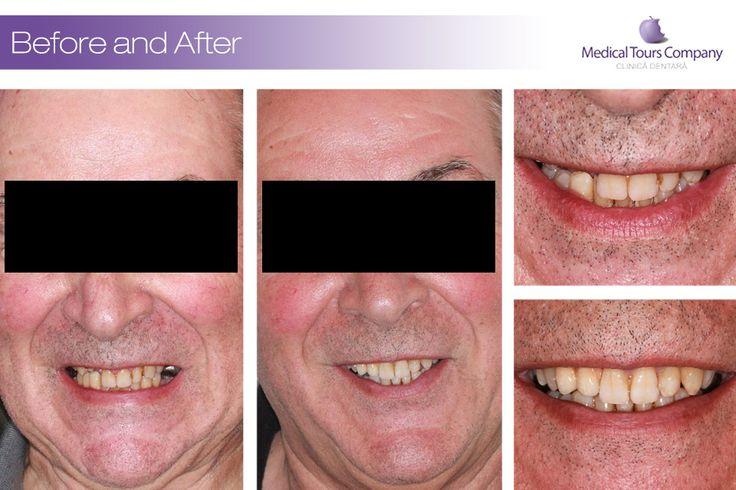 Cazuri inainte & dupa - implanturi dentare - coroane dentare - punti