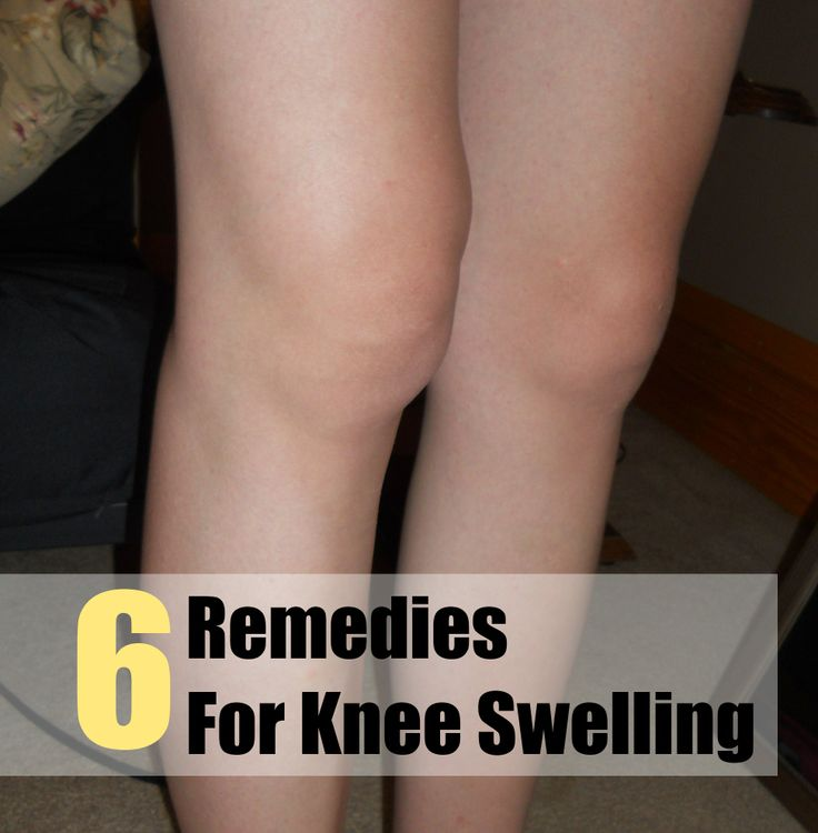 6 Remedies For Knee Swelling