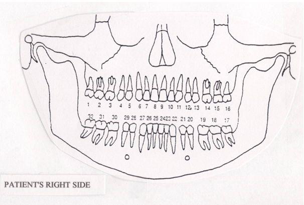 affordable root canals denver dental diagram