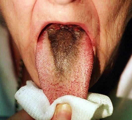 Limba neagra paroasa - Aspergillus Niger este un fung ce poate fi întâlnit în întreg organismul, inclusiv în cavitatea orală. Programari: +40722463368