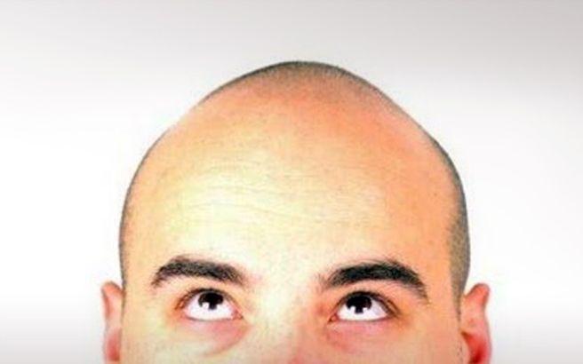 Τι αποκαλύπτει η μεγαλύτερη έως σήμερα γενετική μελέτη για τη φαλάκρα