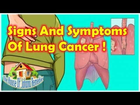 Be careful: The First Signs And Symptoms Of Lung Cancer That You Should Not Ignore - WATCH THE VIDEO   *** symptoms of lung cancer ***   Be careful: The First Signs And Symptoms Of Lung Cancer That You Should Not Ignore First. Lung cancer is the second most common cancer in men and women, and the leading cause of cancer death according to the American Cancer Society. While you may think that...