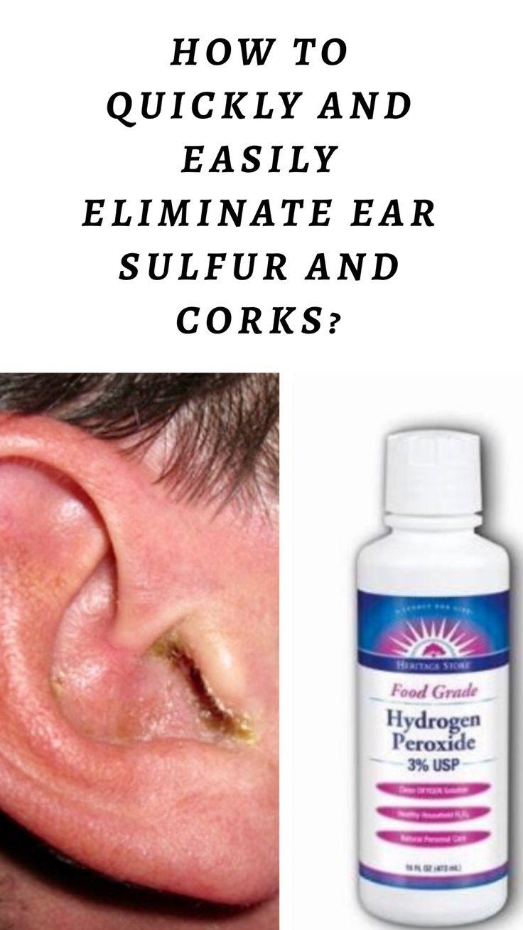 Ear sulfur and ear corks food grade hydrogen peroxide