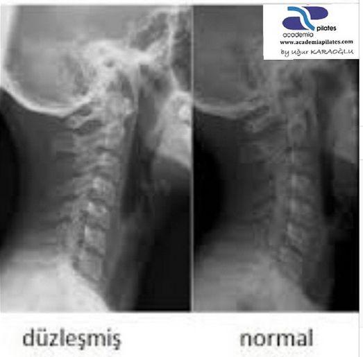 Boyun düzleşmesi, şekli C'ye benzeyen omurga'nın aşırı yüklenme ve aşırı stres gibi nedenlerden dolayı omurga'nın I şeklini almasıdır. Düzleşmiş boyun kavisini tekrar eski haline getirmek ve hastanın normal yaşamına devam etmesini sağlamak mümkündür. Doktor kontrolünde gerçekleştirilen ya da sunulan egzersiz programları sayesinde kısa bir sürede hastalığın tedavisi mümkündür.