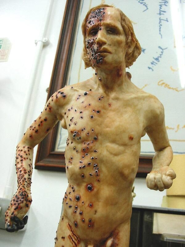 Bubonic plague - wax sculpture by @CrookEleanor: http://www.eleanorcrook.com/gallery/medical/… pic.twitter.com/XhHMSKCUXC