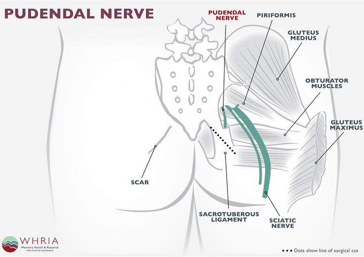 Pudendal Neuralgia Treatment & Symptoms | The Pudendal Nerve  extends from the sacrum / tailbone near the Sciatic Nerve