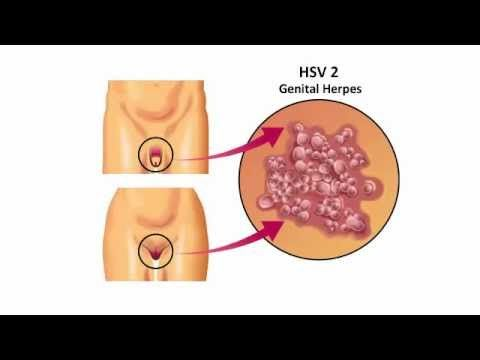 Cure For Herpes? - Don't Get Fooled -Stop Herpes Fast