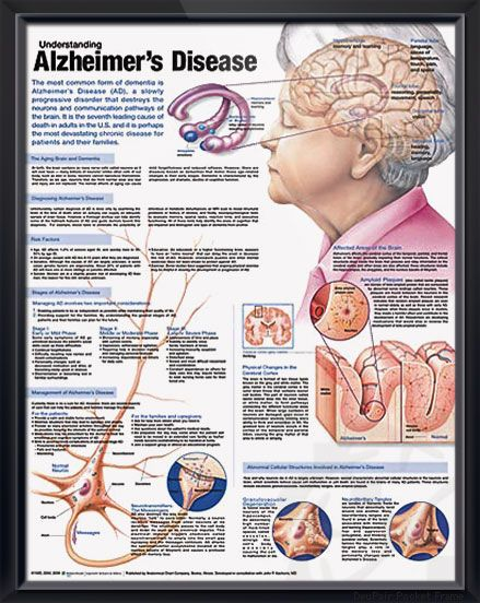 Understanding Alzheimer's Disease anatomy poster discusses the aging brain, dementia and methods of diagnosing AD for patient caregiver education. Neurology chart for doctors and nurses.