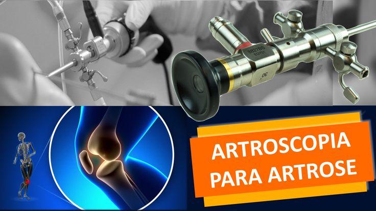 www.cirurgiadejoelho.med.br / O DR. ADRIANO KARPSTEIN, médico ortopedista especialista em Cirurgia de Joelho e Medicina Esportiva, explica sobre ARTROSCOPIA PARA ARTROSE NO JOELHO. ? #joelho #cirurgiadejoelho