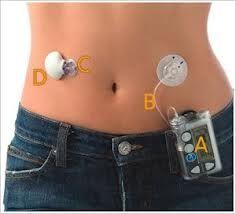 Insulin pump with CGM