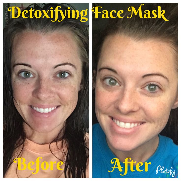 Before after using the bamboo charcoal detoxifying face