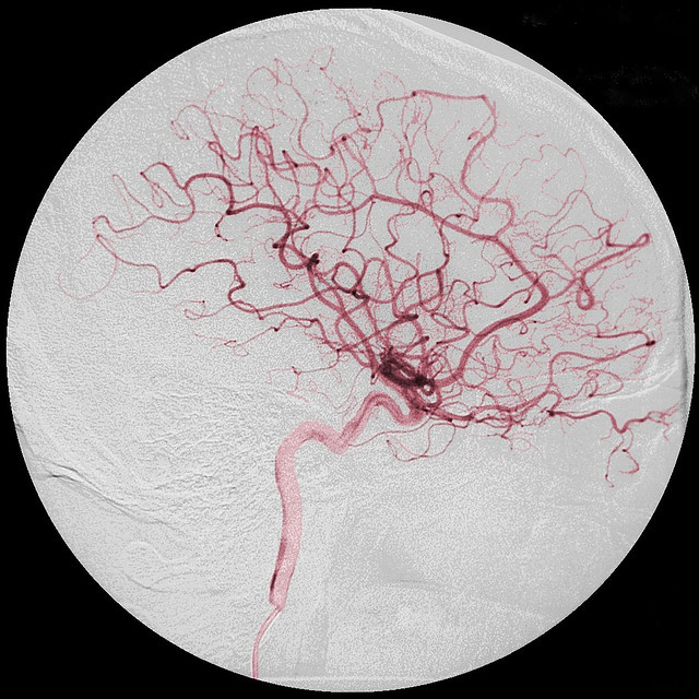 Cerebral angiogram of the blood vessels in my brain. I added selective colour to the original greyscale image.