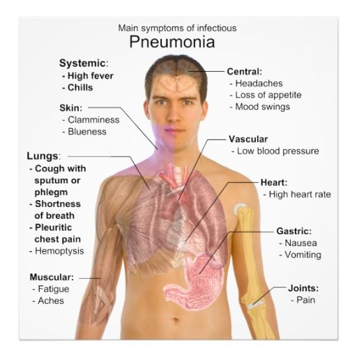 43 best Pneumonia images on Pinterest | Aspiration pneumonia ...