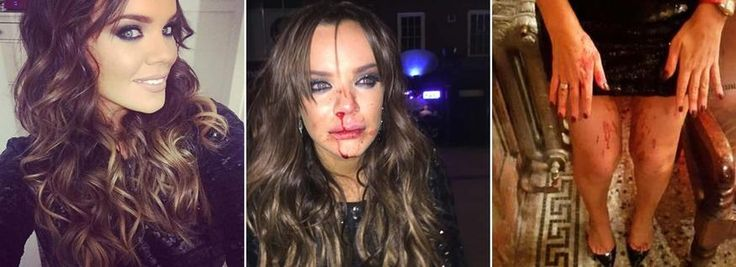 \'Punched in brutal attack\' Maria Fowler streaming with blood after assault MARIA FOWLER has been pictured with blood streaming from her nose after being assaulted on Saturday night.  The former TOWIE reality star was partying in Derby when she fell victim to the bloodied attack.  Fighting back the tears, Maria can be seen looking distressed while out in public, with blood smeared across her cheeks, chin and lips.  Police are now said to be investigating the brutal strike to her ...