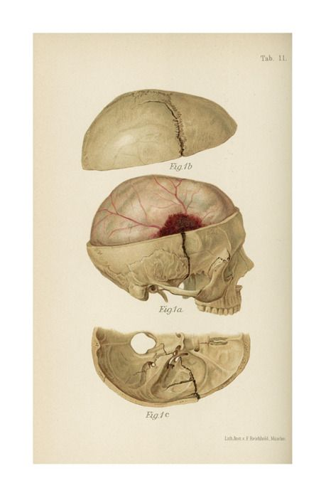 Hématome. Crâne. Epidural hematoma, page 118 from Medical Illustration Atlas and Epitome of Traumatic Fractures and Dislocations, by Heinrich Helferich, Joseph Colt Bloodgood, 1902 (https://www.pinterest.com/pin/287386019949513892). Enlarge: https://www.pinterest.com/pin/287386019949637897/ - See: https://www.pinterest.com/pin/287386019949638010/