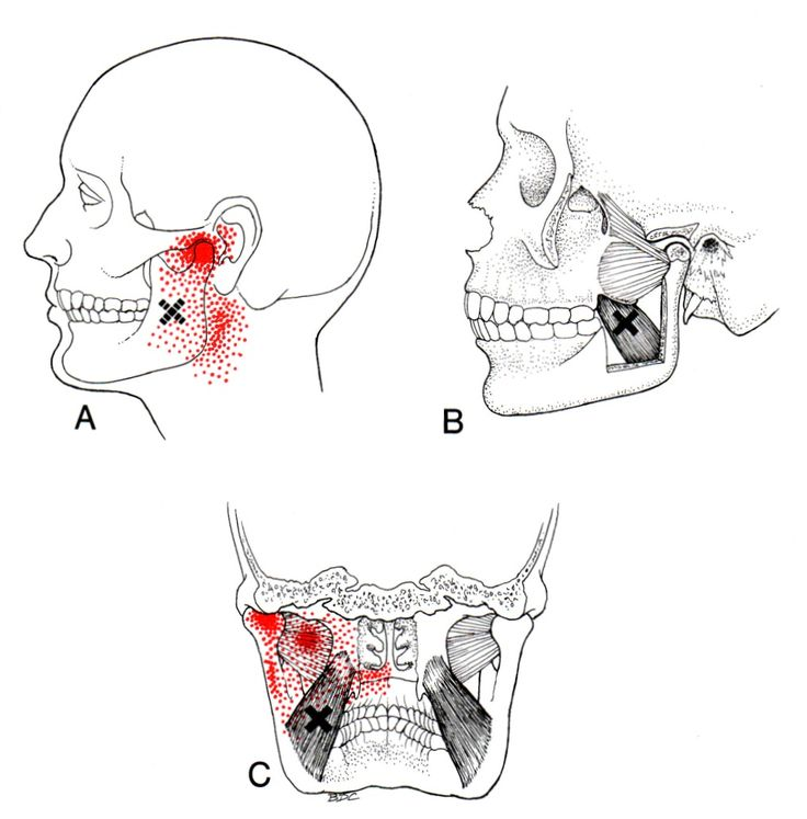 182 best images about trigger points on pinterest