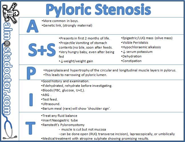 Pyloric Stenosis | almostadoctor.com - free medical student revision notes