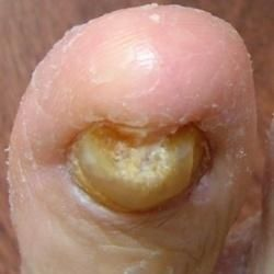 http://mkthlth2.digimkts.com  I am in LOVE!  toe fungus water  Natural Cure For Toe Fungus...How To Cure Toe Fungus Naturally Maintain Hygiene, Warm Water, Lemon Juice And Salt, Turmeric And Neem, Coconut And Fenugreek, Lavender Oil, Camphor And Mustard Oil