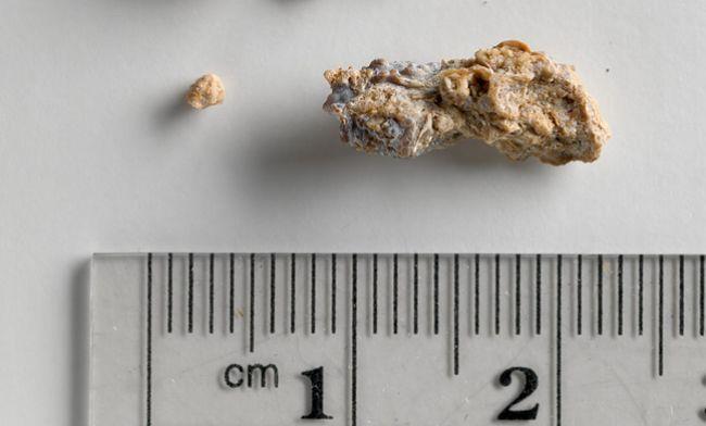 10 potravín, ktoré najčastejšie spôsobujú obličkové kamene