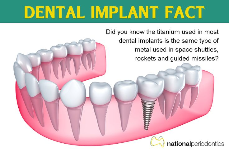 Dental Implant Fact - Did you know the titanium used in most dental implants is the same type of metal used in space shuttles, rockets and guided missiles?