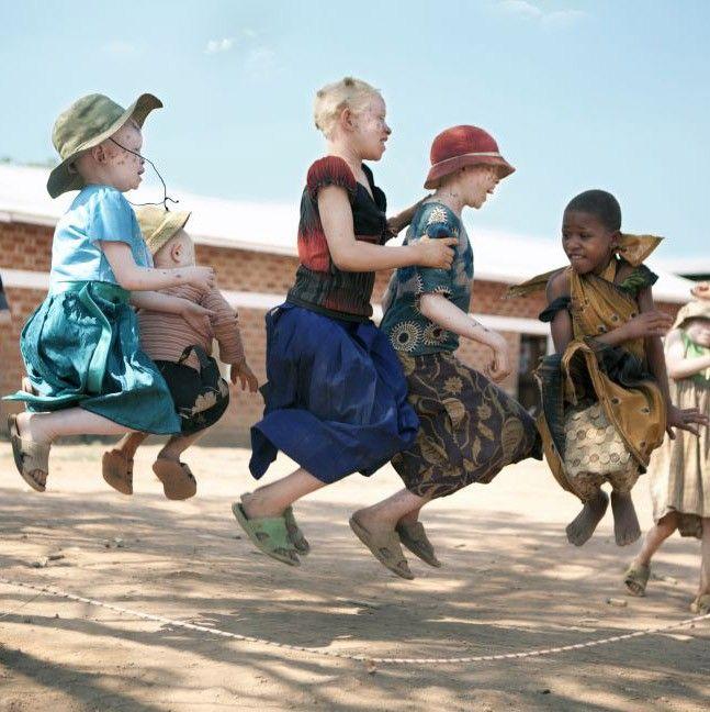 Por temas de brujería y superstición, los albinos son perseguidos en una verdadera caza de brujos. Además, tienen que protegerse del sol, otro gran enemigo. Pero esta exposición del refugio Kabanga, busca mostrar un lado mucho más esperanzador. - La caza de albinos negros en África y la exposición que muestra su lado más alegre - El Definido