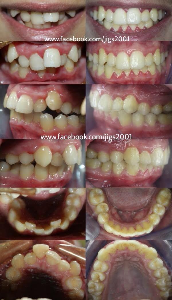 Teeth Alignment & Smile Correction