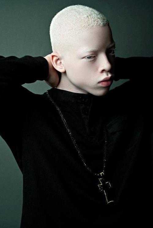 albino black model - 500×748