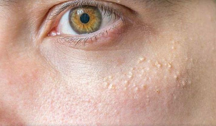 6 techniques naturelles pour retirer les grains de milium autour des yeux noté 3.36 - 100 votes Les grains de milium sont des kystes blanchâtres ou jaunâtres durs semblables à des boutons d'acné blancs qui apparaissent sur le visage et surtout autour des yeux. Bien que ne constituant pas un problème pour la santé (il...