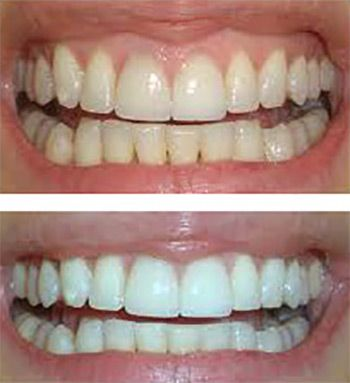 Florida Dental Care of Miller utilize state of the art technology like digital radiographs and hospital grade sterilization protocols to ensure your safety at all times. Our Miami teeth whitening brighten your teeth using the latest technology.