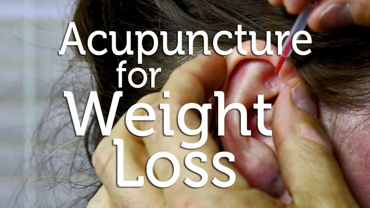 Acupuncture for Weight Loss -  For some of you, it may sound crazy but using acupuncture as a technique for weight loss is reliable and safe without causing any harm. Now, following acupuncture for weight loss, you can shed the extra pounds in various different ways which are discussed below.