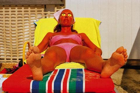 "My title for this pic would be ""OUCH"" but it's really called ""relaxing in the sun, by Martin Parr"""