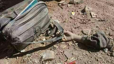Trump Is Yemen will protect children from the rockets and Taarat Saudi Arabia Yemen kills school children education yemen