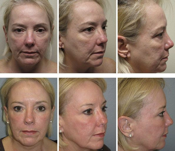 ProFractional Laser Peel #aging #skin #profractional #laer #peel #treatment #marionette #lines #wrinkles #face #juvederm #cosmetic #plastic #surgery #rhinoplasty #facelift #facial #beauty #surgeons #lake #oswego #portland #oregon #tricities #washington @DrLeeRobinson