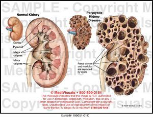 17 Best images about Kidney Disease on Pinterest | Kidney ...