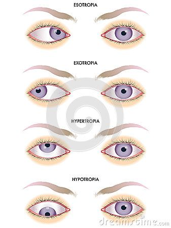 41 best images about Strabismus on Pinterest ...