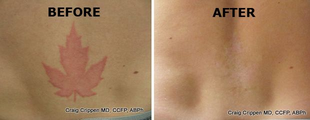 54 best images about tattoo removal before and after for Tattoo removal az