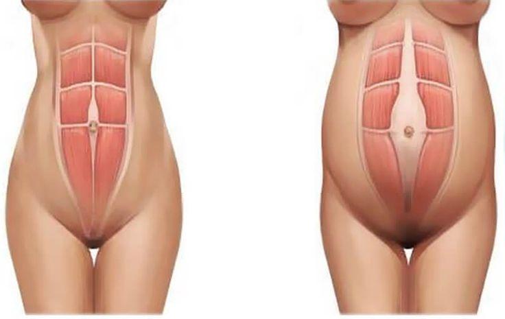 Диастаз прямых мышц живота после родов. Кто виноват и что делать
