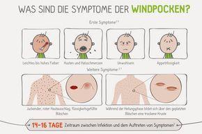 WIndpocken Symptome